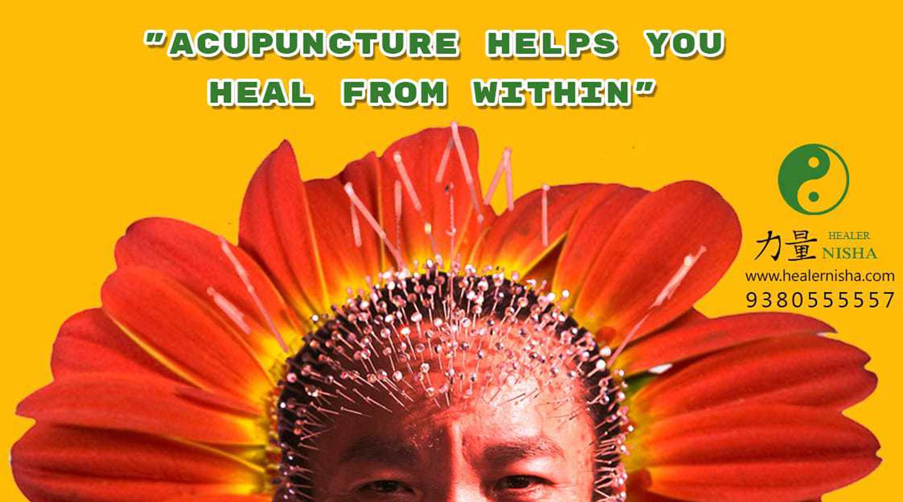 Acupuncture clinic in tambaram